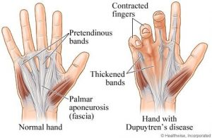 ​Dupuytren's Contracture