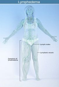 Lymphedema Image