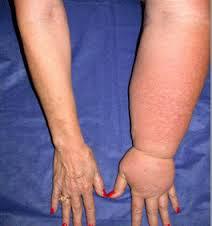 Lymphedema Symptom Image